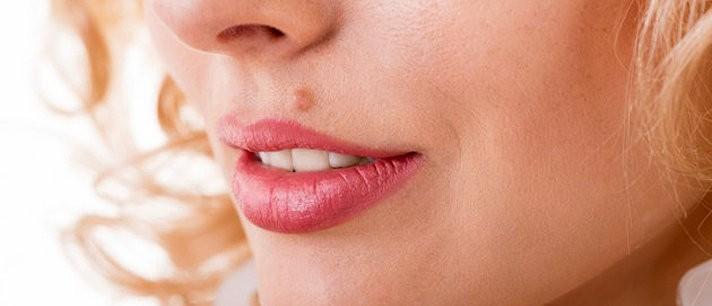 Remédios caseiros contra as verrugas