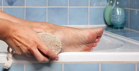 Remédios caseiros para acabar com os calcanhares rachados