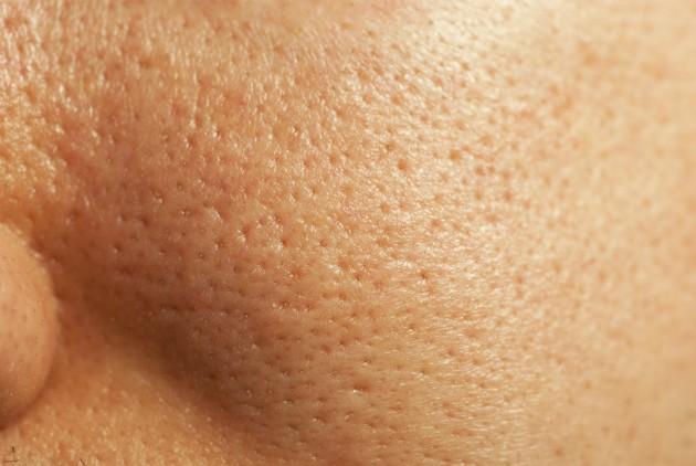 Como você deve limpar sua pele de maneira saudável