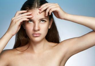 3-dicas-para-prevenir-o-aparecimento-de-espinhas-no-rosto
