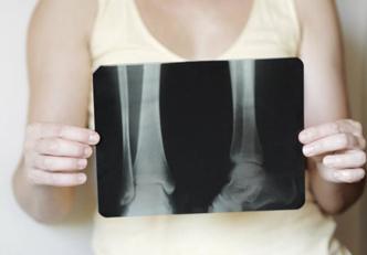 O que é osteopetroses?