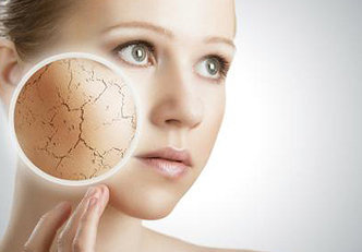 6 remédios naturais para a pele irritada