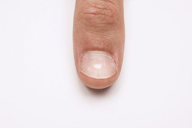 Sinais de enfermidades através das unhas