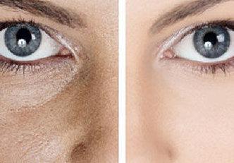 Remédios naturais para reduzir os poros abertos