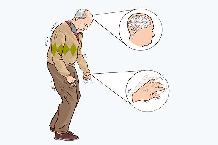 Os primeiros sintomas da doença de Parkinson