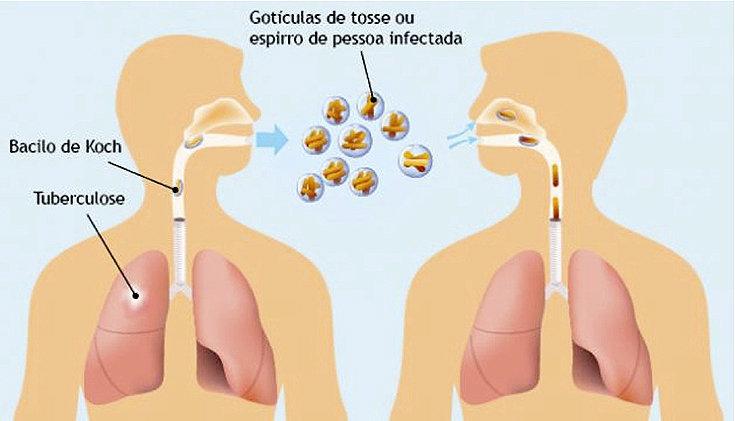 Tuberculose: causas, sintomas e tratamentos!