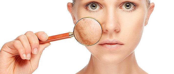 Câncer de pele: causas, sintomas, prevenção e tratamentos!