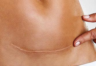 7 coisas que ninguém te fala sobre as cesarianas