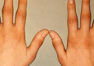 Diferenças entre a artrite reumatóide e a osteoartrite