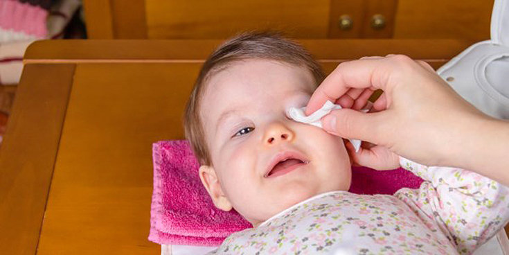 Conjuntivite em crianças: infecciosa e alérgica