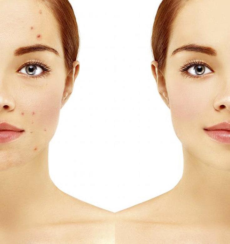 7 benefícios do vinagre de maçã para a pele