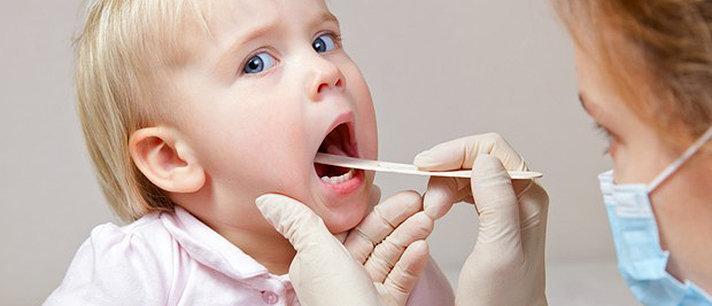 Faringite em crianças: sintomas, causas, tratamentos e mais!