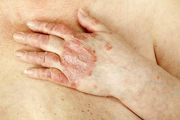 As 8 doenças de pele mais comuns