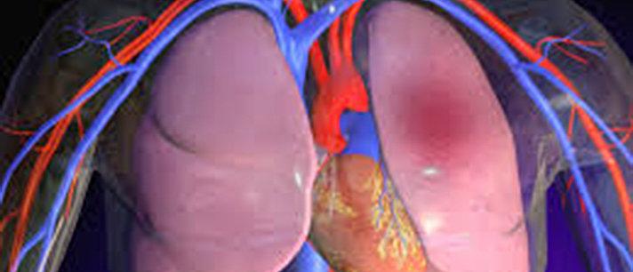 Embolia pulmonar: sintomas, causas, tratamentos e mais!