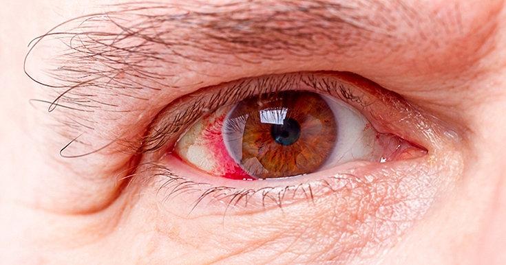 Glaucoma: tipos, sintomas, diagnóstico, tratamento e mais!