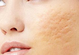 7 remédios caseiros para eliminar as cicatrizes de acne