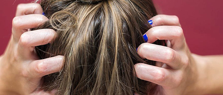 Como prevenir e tratar o eczema capilar