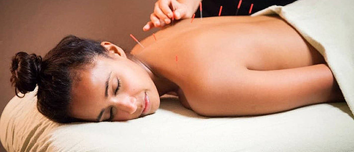 9 surpreendentes benefícios da acupuntura!